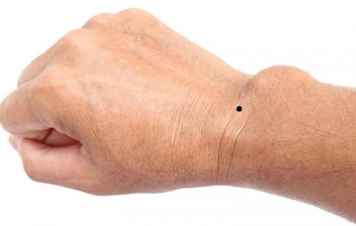Nốt ruồi ở cổ tay phải tiết lộ điều gì 827227618