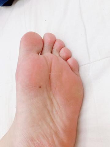 Ý nghĩa nốt ruồi ở lòng bàn chân trái 661098395