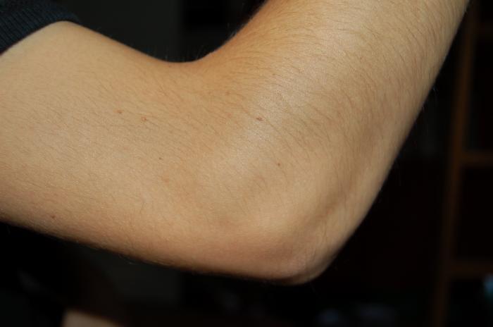 Người có nốt ruồi ở khuỷu tay thường có tướng số thế nào? 1195936585