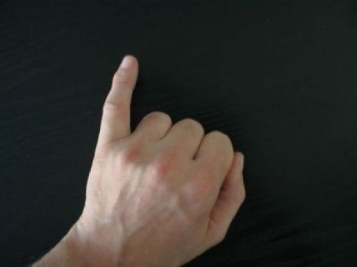 Nốt ruồi ở ngón tay út tiết lộ điều gì về bạn? 1282619363