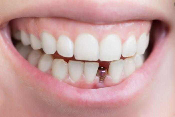 Nằm mơ thấy rụng răng hàm dưới đánh con gì trúng lớn?  1679772496