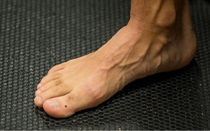 Giải mã ý nghĩa nốt ruồi ở chân của nam 521739426