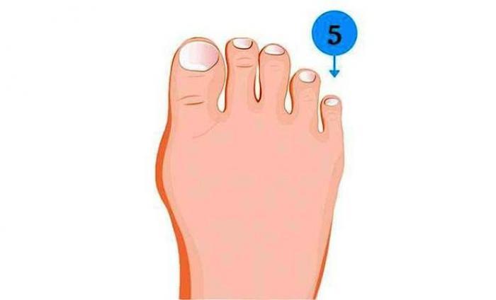 Nốt ruồi ở ngón chân út tiết lộ điều gì? 1098715012
