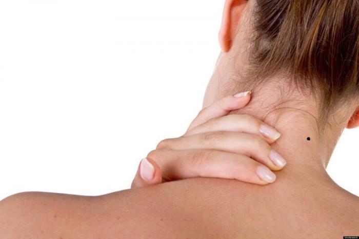 Ý nghĩa nốt ruồi ở gáy của đàn ông và phụ nữ là gì? 742340719