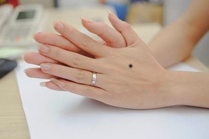 Nốt ruồi trên mu bàn tay mang ý nghĩa gì? 376498571