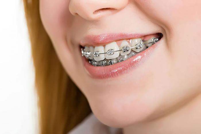 Giải đáp thắc mắc mơ thấy niềng răng đánh con gì trúng lớn? 1287803936