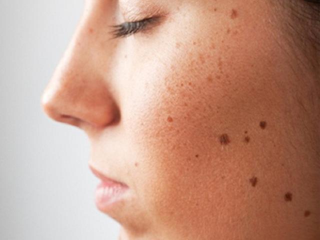 Giải mã ý nghĩa của các vị trí nốt ruồi trên mặt của nam 1474347150