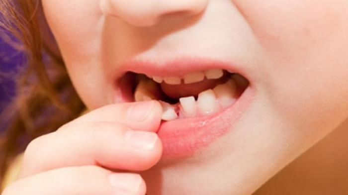 Nằm mơ thấy răng bị lung lay báo hiệu điều gì?  199279432
